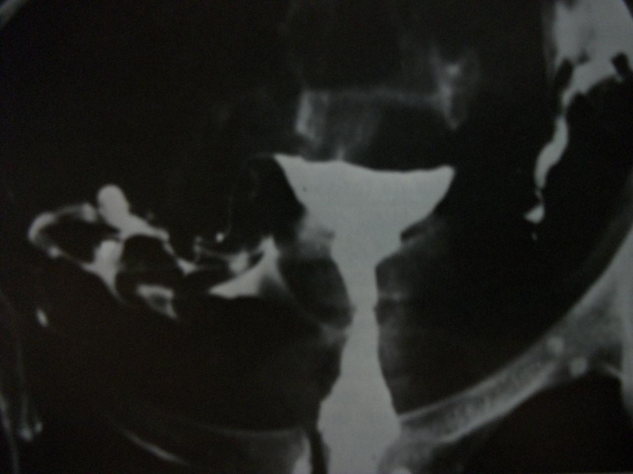 Resultado do exame histerossalpingografia