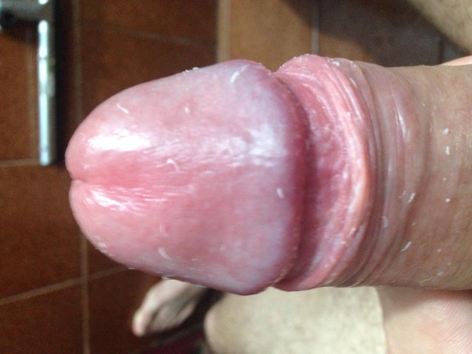Para aumento em um pênis do membro